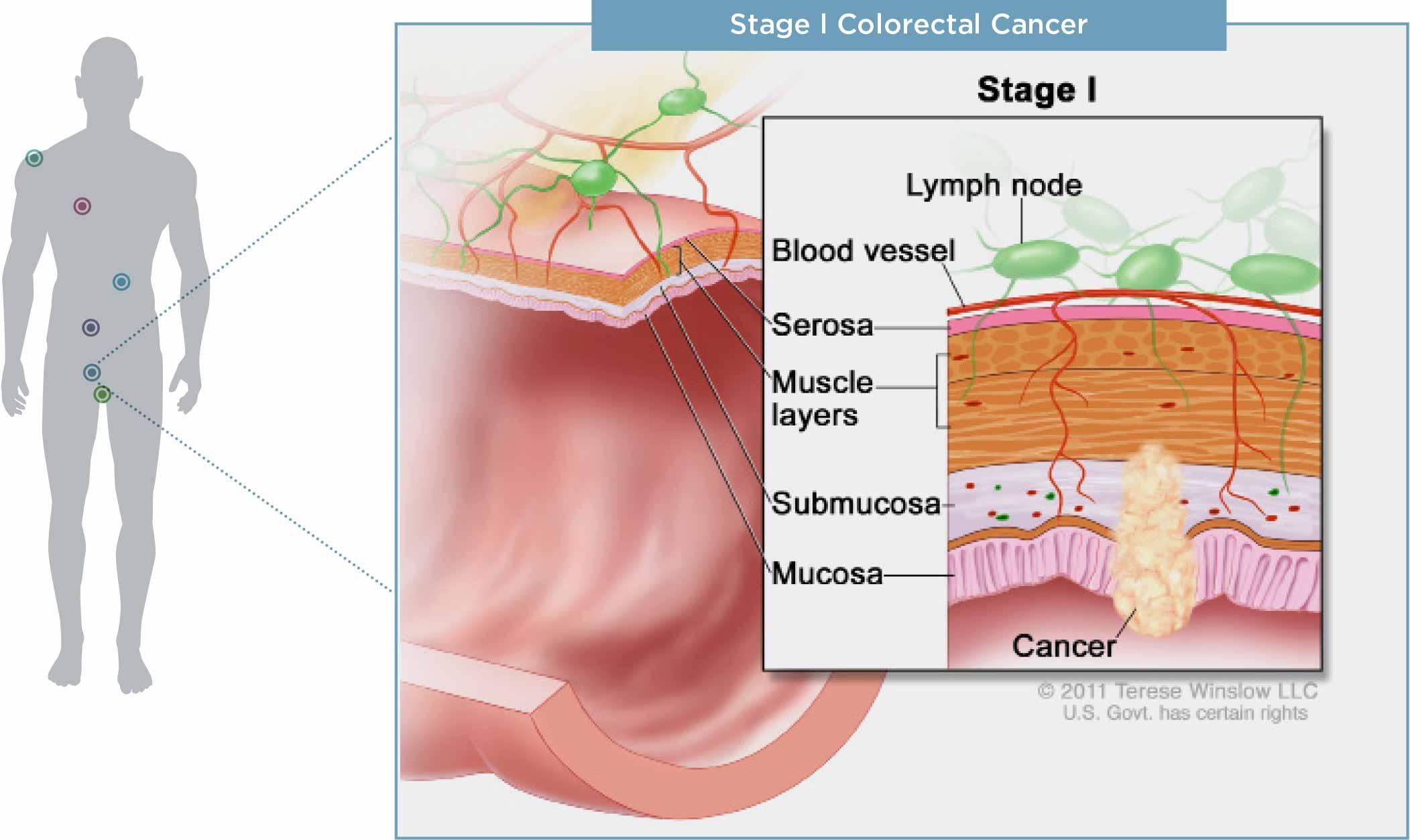 cancer diagram cancer types - myriadmyrisk